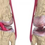 ¿Qué es la artrosis articular y cuáles son sus causas?