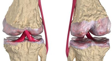 fisioterapia-online-degeneracion_articular-artrosis-cartilago_articular-b
