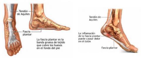 la_fascia_plantar_1