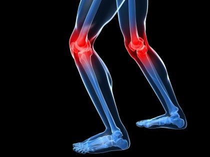 Trata-de-prevenir-el-dolor-anterior-de-rodilla.-420x315